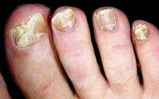 Методы лечения грибка на ногтях пальцев ног