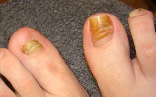 Что делать с грибком ногтя на большом пальце