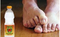 Как лечить грибок ногтей уксусом