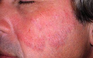Как вылечить грибок на лице