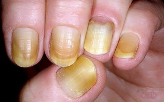 Плесневый грибок на ногтях