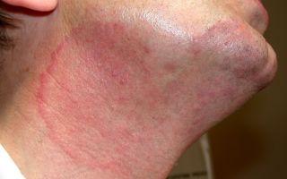 Что такое дерматофития