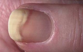 Причины отслоения ногтя от ногтевого ложа на руках