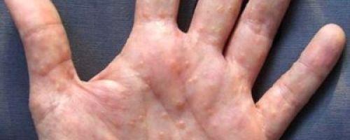 Микоз (грибок) на руках — почему происходит заражение и как лечить пораженные грибком ладони