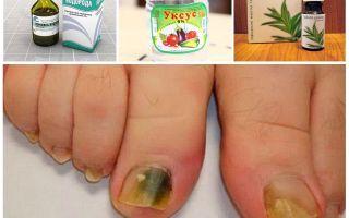 Эффективное лечение грибка на ногах народными средствами