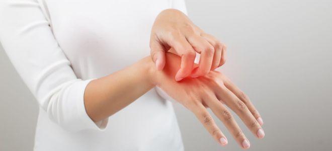 Почему чешется между пальцами рук