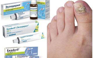 Лучшие лекарства от грибка ногтей
