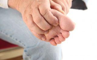 Почему чешутся стопы ног