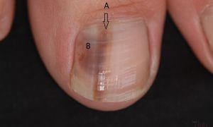 Почему чернеют ногти на руках если травм не было? Похоже это грибок…