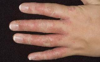 Как выявить грибок на коже пальцев рук