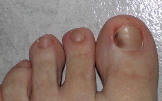 Как лечить темные ногти