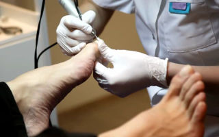 Делают ли педикюр при грибке ногтей
