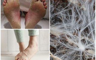 Узнай что такое Мицелий — Может грибок уже протянул к вам свои тонкие нити