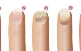 Что делать с грибком на ногтях?
