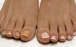 Признаки и лечение грибка ногтей на ногах