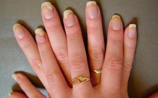 Наращивание ногтей — как обезопасить себя от грибка