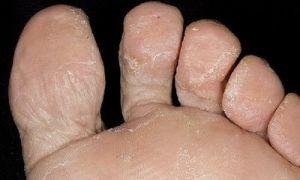 Грибок на пальцах ног — Как быстро избавиться от микоза на пальцах стоп