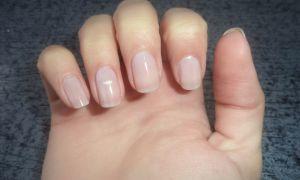 По каким причинам болят ногти на руках