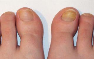 Как выявить грибок на ногтях ног