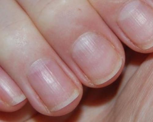 Появились продольные полосы на ногтях рук? Узнай про причины и лечение!
