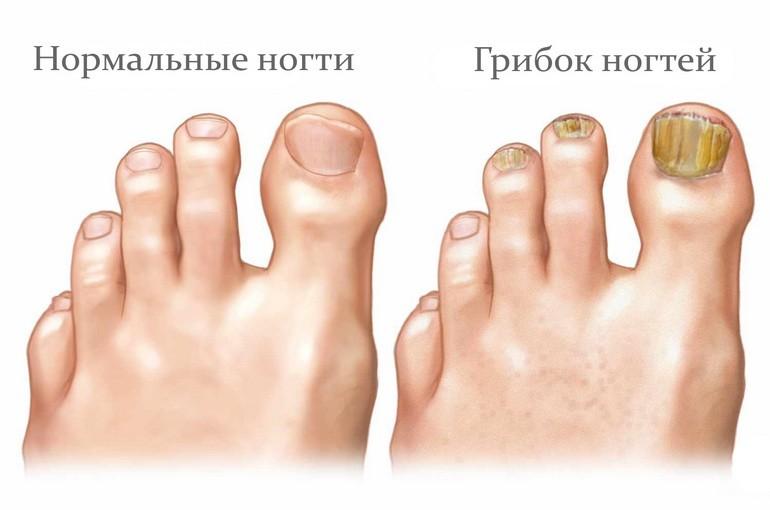 Сравнение нормального ногтя с грибковым