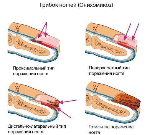 Как появляется Онихомикоз