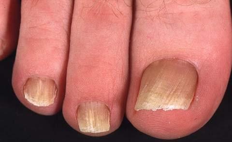 грибок на ногтях конечностей
