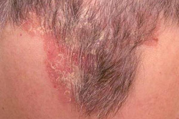 Из-за чего кожа головы страдает