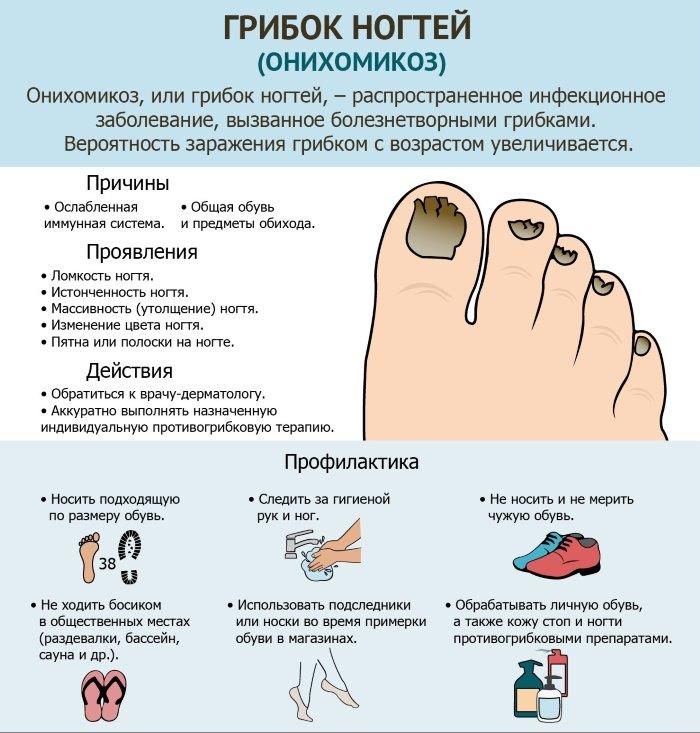 Причины черного ногтя
