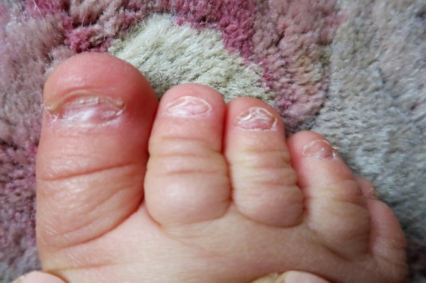Как выглядит грибок ногтя
