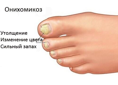 Лечение онихомикоза у детей