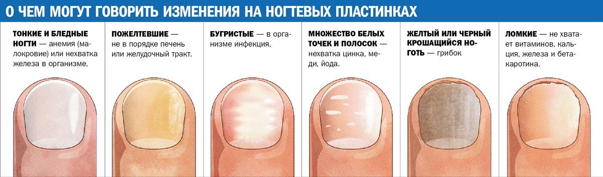 Симптомы грибка