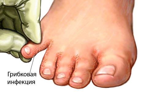 Грибок на ногах? Стопа атлета - В группе риска все! Что такое грибок на ногах - симптомы и лечение