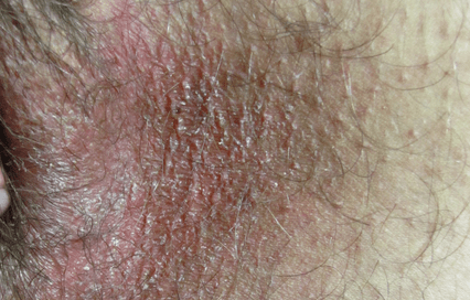 Симптомы пахового грибка