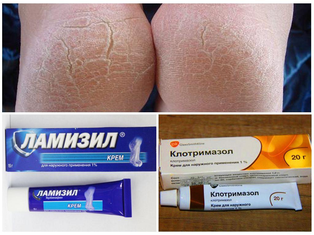 Таблетки лечить грибок кожи