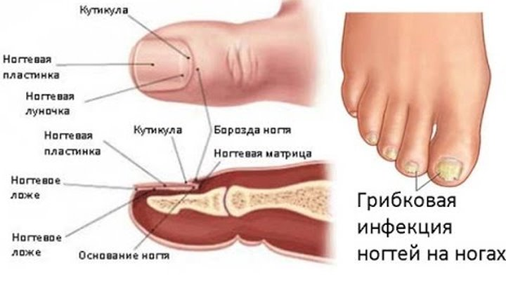 Какие симптомы грибка