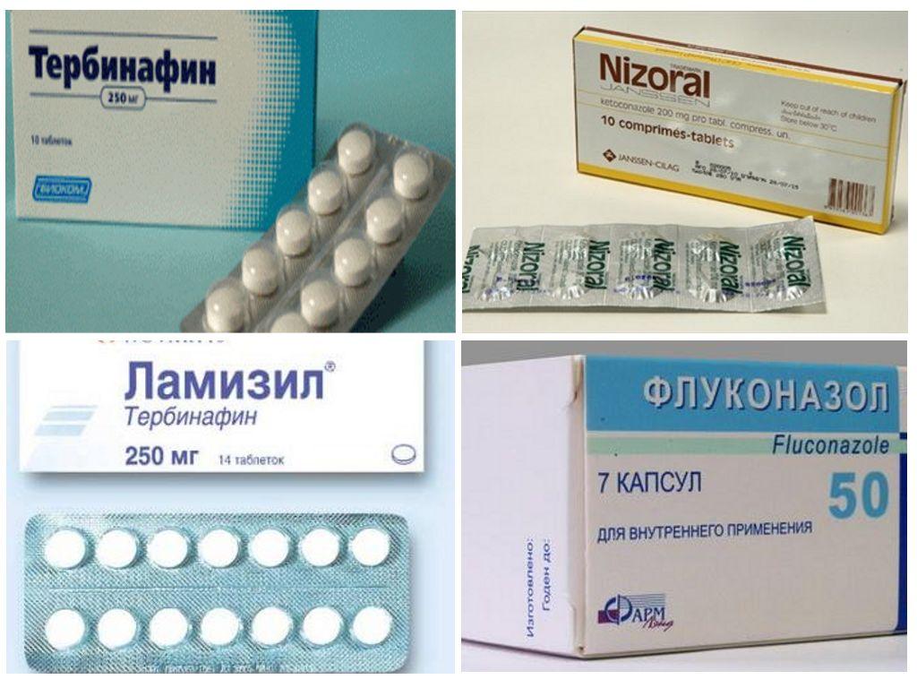 Выбор таблеток при лечении грибка