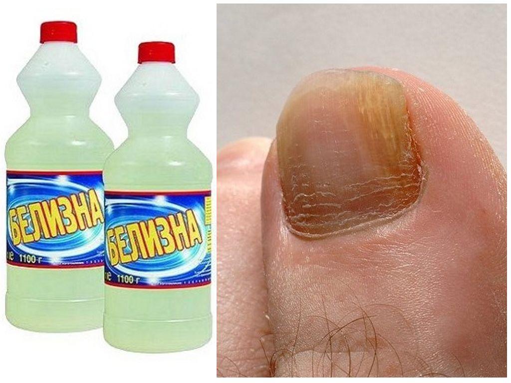Как лечить грибок ногтей белизной