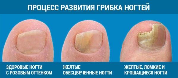 Что нужно знать про грибок ногтей