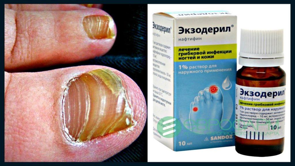 Лекарство от грибка ногтей Экзодерил