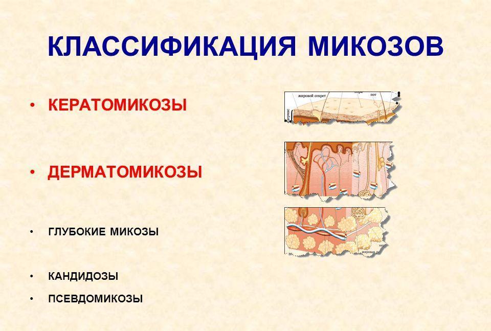 Какие бывают виды грибка