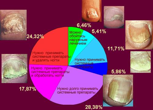 Признаки грибка