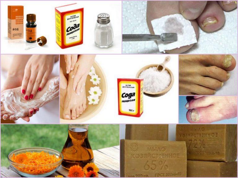 Грибок ногтей народные средства сода