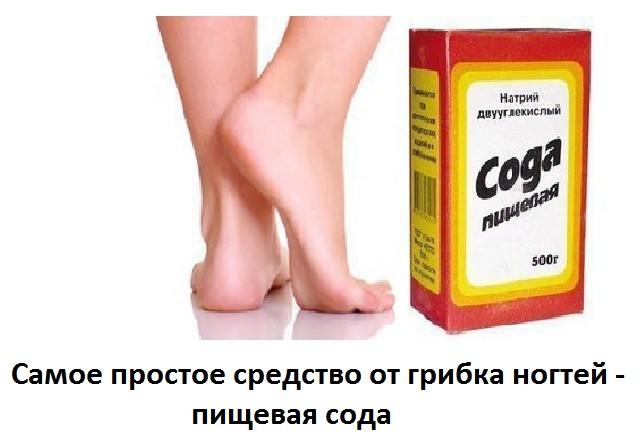 Питьевая сода при грибке ногтей