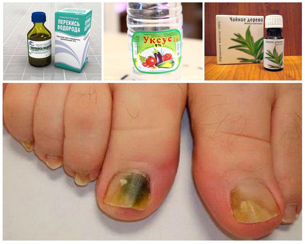 Грибок ног народные методы лечения