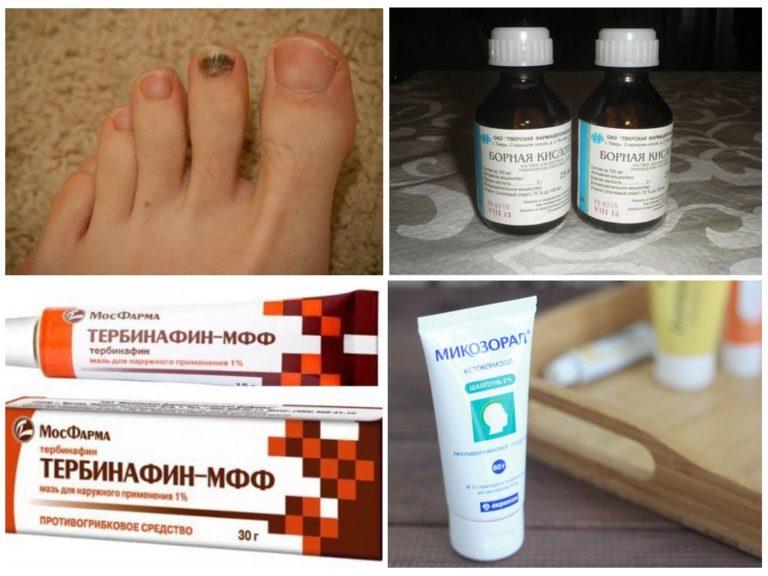 Каким лекарством лечение грибка на ногах