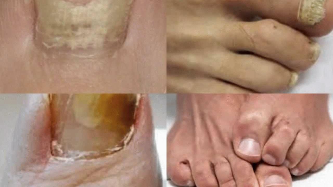 Какие симптомы грибка ногтей на ногах