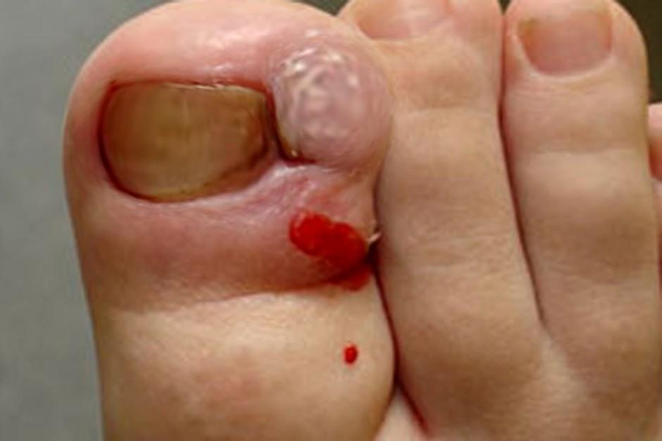 Как правильно лечить вросший ноготь