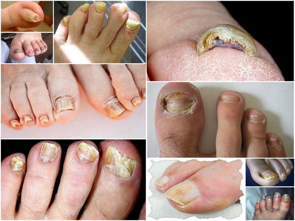 Чем опасен грибок ногтей на ногах