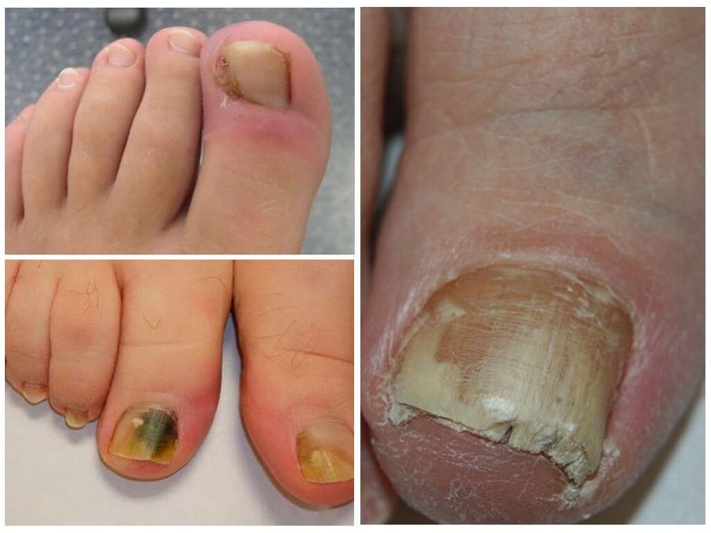 Ногти болезни лечение грибка
